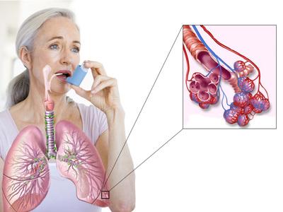 Можно ли избавиться от астмы навсегда