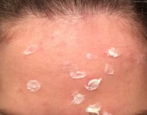 Аллергия на лбу у взрослого