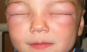Опасная аллергическая реакция