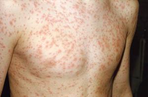 Сыпь на теле из-за инфекции