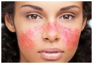 гипоаллергенная косметика на allergo.guru