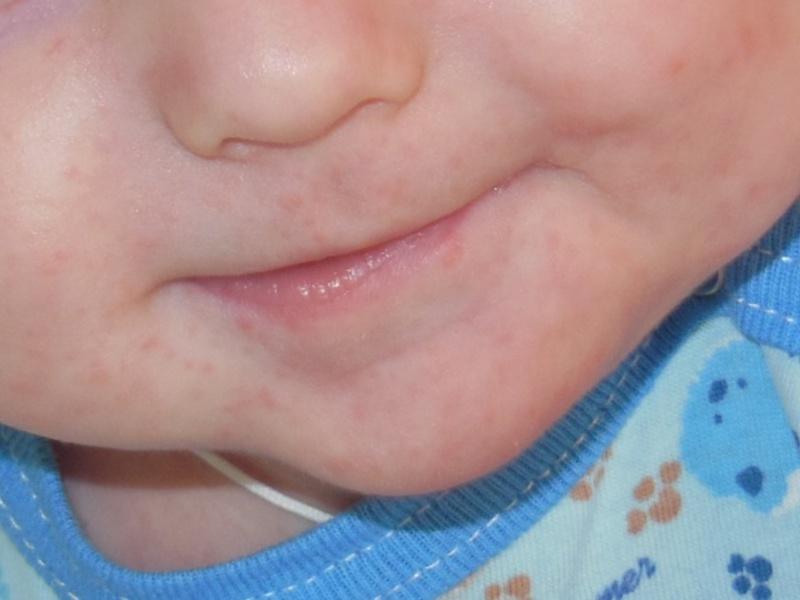 аллергия на коровий белок у взрослого