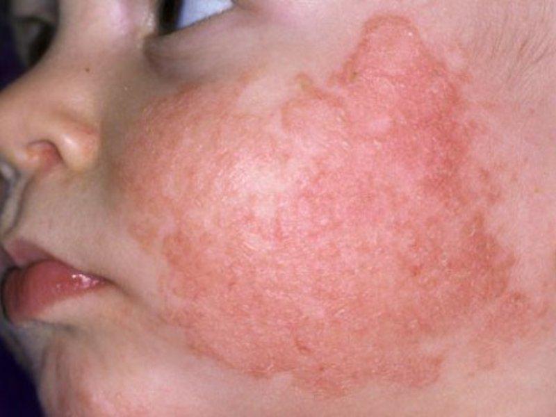 Как лечат высыпания на коже