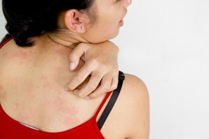 Зуд при крапивнице и другие симптомы