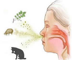 сухой кашель при аллергии чем лечить