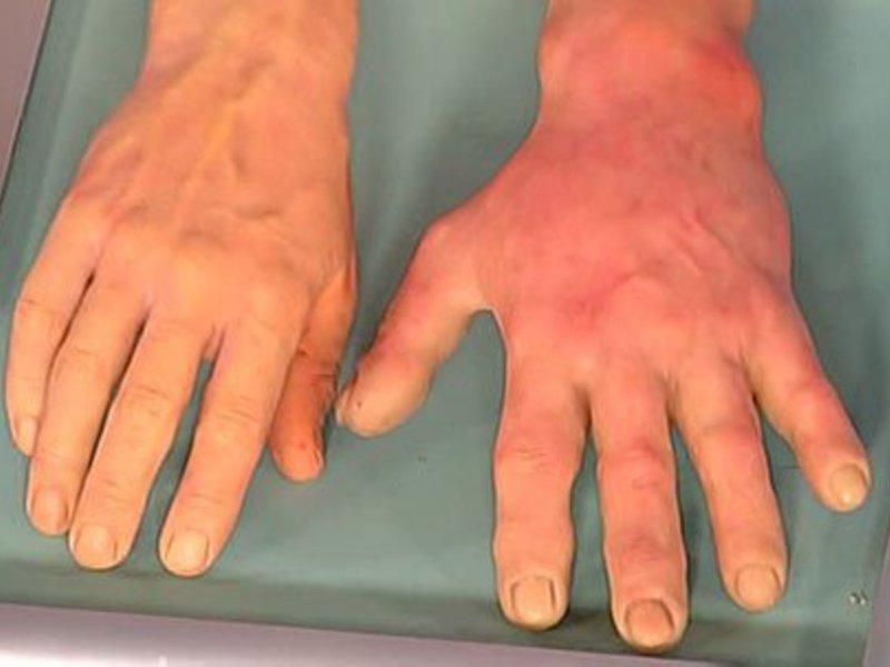 аллергия на холод симптомы и лечение мне говорили,а