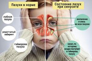Причины заложенности носоглотки