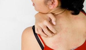 Описание патологии кожи дерматита