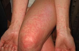 Высыпания на теле - основной симптом для всех видов дерматита