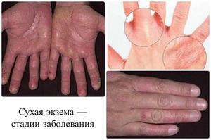 Экзема: народные средства для лечения в домашних условиях, как лечить заболевание на руках