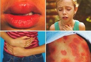 Чем опасна аллергия
