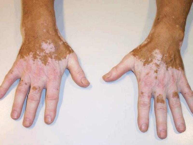 виды аллергии на теле
