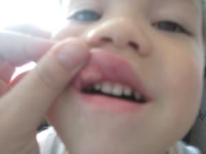 Ребенок упал опухла верхняя губа